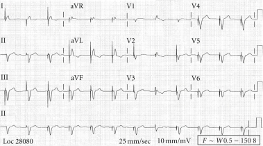 Baseline ECG (two months prior to presentation): ventricular-paced rhythm at the rate of 70, corrected QT interval (QTc) of 410 milliseconds (msec).