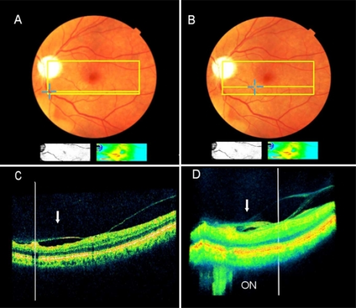 Extrafoveal multifocal vitreoretinal traction associated with pseudophakic CME as detected by the SD-OCT (Pt. 2). A + B. The clinical picture and the accompanying small false-color map (below the fundus picture), as detected by 8.2mm X 3 mm scan area (the colored rectangle) illustrate macular edema (red and yellow colors). The blue crosses, one in A and one in B, demonstrate two extrafoveal vitreoretinal traction sites. One retinal edema site (in B) is shown by the false-color map to be in continuum with the central macula. C + D. The B-mode (C) and the 3-D image reconstruction (D) reveal two sites under traction by one continuous vitreous membrane (arrow). Each traction site is manually marked by a vertical white line, and its retinal location is shown automatically by yellow crosses in A & B. The optic nerve (ON) is seen in D.