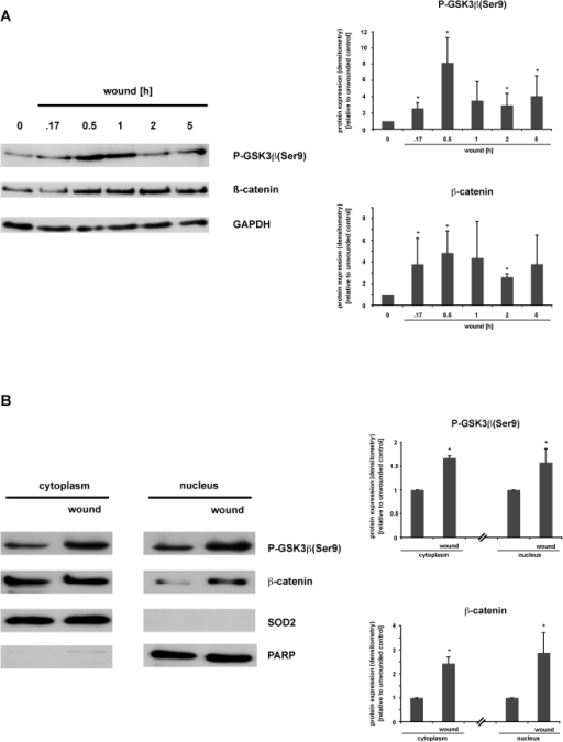 Wounding induces GSK3ß(Ser9) phosphorylation, ß-catenin accumulation and nuclear translocation in IEC18 cell monolayers.Rat intestinal epithelial IEC18 cells were grown to confluency in 6-well-plates, serum-starved overnight, and cell monolayers were then wounded by multiple scraping. (A) At the indicated time points, total cell protein extracts were prepared and analysed for GSK3ß signaling pathway activation via Western blot. (B) 30 minutes after wounding, cells were lysed, subcellular fractions of nuclear/cytoplasmic protein were prepared and analysed for phospho-GSK3ß(Ser9) and ß-catenin accumulation via Western blot. (A,B) Densitometry was performed on n = 3–4 different Western blots (each representative of an independent experiment) per condition and normalized to the respective loading controls (GAPDH, SOD, PARP). Protein expression is expressed as -fold protein induction relative to the respective unwounded control. Data are expressed as means ± S.D. of 3–4 different experiments per condition. Statistical analysis was performed by the two-tailed Student's t test (*p<0.05 versus control).