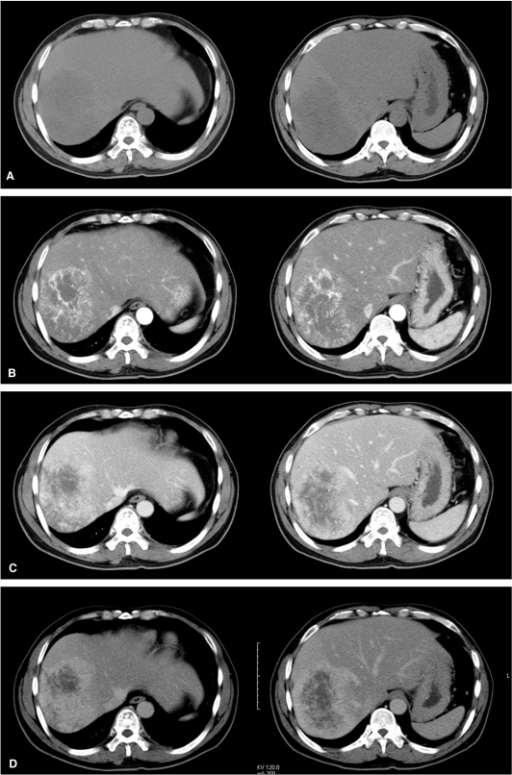 dynamic contrast enhanced ct scans a precontrast ct
