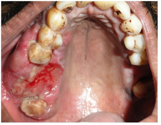 Diffuse, reddish, and slightly ulcerated lesion in the right alveolar region.