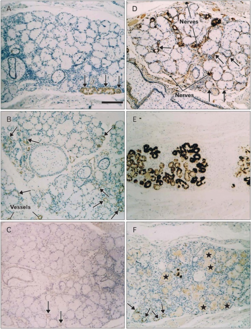 Immunohistochemistry of a small palatal gland at the soft palate (88-year-old man). (A) p63, (B) alpha-smooth muscle actin (α-SMA), (C) glial fibrillary acidic protein (GFAP), (D) S100 protein (S100), (E) cytokeratin 19 (CK19), (F) cytokeratin 14 (CK14). (A) p63 is weakly expressed in some thick ducts (arrows). (B) SMA is expressed in a limited number of myoepithelial-like cells (arrows). (C) GFAP is weakly expressed in some ducts (arrows). (D) S100 expression is seen in myoepithelial-like cells (arrows) as well as in nerves. (E) CK19 is expressed in all the ducts. (F) CK14 reactivity is seen in the debris in the thick ducts (stars) as well as in some myoepithelial-like cells (arrows). All micrographs were taken at the same magnification. Scale bar in (A)=0.1 mm (A-F).
