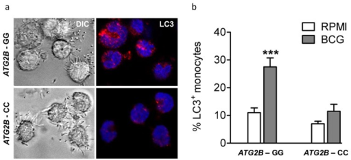 Autophagy affected by SNP in ATG2B.(a–b) Monocytes genotyped for ATG2B rs3759601 were seeded on coverslips, and stimulated with BCG. After 1 hour of stimulation, cells were fixed and stained with an antibody against LC3. Slides were analyzed by confocal microscopy. Data are representative for 3 experiments.