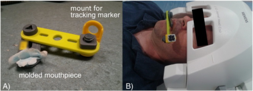 Mini bite bar set up used to securely attach the tracking marker to the subject. A) Each bite bar was individually molded to the volunteer's upper front teeth using a medical grade hydroplastic (TAK Systems) and included a two-hinge mounting system for flexible placement of the tracking marker. B) Image of a volunteer with the mini bite bar and tracking marker taken from approximately the same angle as where the camera would be located in the scanner bore.