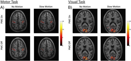 Statistical t-score maps of significantly activated voxels (uncorrected p < 0.001) from the task fMRI experiments. Results from 2 × 2 factorial design experiments showing combined activation maps from A) left and right finger-tapping stimulation and B) left and right visual hemi-field stimulation.
