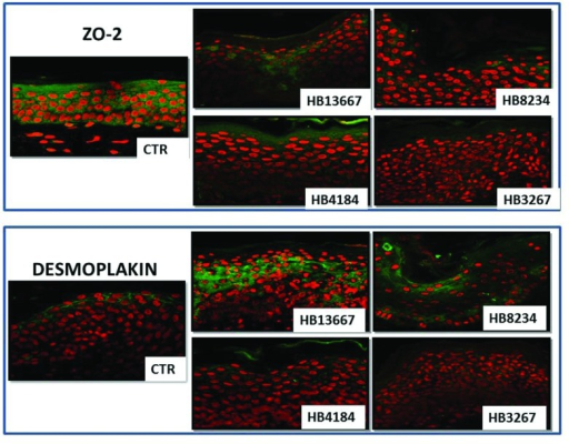 Analysis of the integrity of epithelial cell-cell junctions as determined by immunohistofluorescence for ZO-2 (upper) and desmoplakin (lower) in human skin samples incubated with the different P. putida strains (HB13667, HB8234, HB4184, and HB3267) and control non-inoculated skin (CTR). Positive signal is labelled in green and cell nuclei have been counterstained in red.