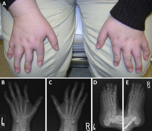 (A) At present, the hands of the proband are notable for malformed digits. (B and C) X-rays of the hands at present. See text for detailed description. (D and E) X-rays of the feet at present. See text for detailed description.