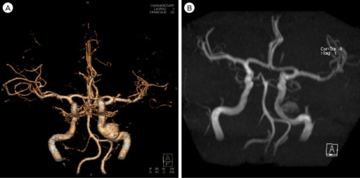 An approximately 1 5 cm-sized aneurysm located at the p | Open-i