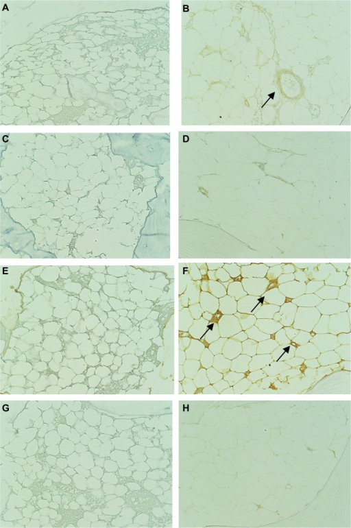Immunohistochemical comparison of the expression of MAPK in bone (magnification, 200×; black arrow shows strong positive). (A) and (B): CD29 (β-1 integrin); (C) and (D): JNK; (E) and (F): ERK; (G) and (H): P38 MAPK. (A), (C), (E), and (G): control group (MTX); (B), (D), (F), and (H): abatacept group.