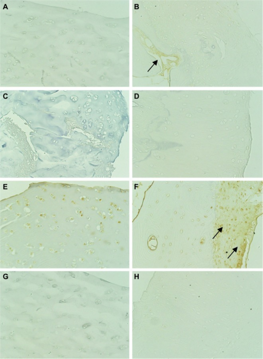 Immunohistochemical comparison of the expression of MAPK in cartilage (magnification, 200×; black arrow shows strong positive). (A) and (B): CD29 (β-1 integrin); (C) and (D): JNK; (E) and (F): ERK; (G) and (H): P38 MAPK. (A), (C), (E), and (G): control group (MTX); (B), (D), (F), and (H): abatacept group.