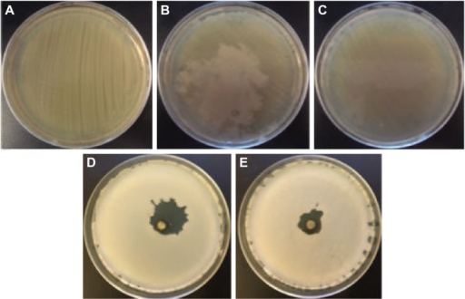 Photographs of the Staphylococcus aureus bacteria grown on agar plates.Notes: (A) control experiment, (B) in the presence of the extract of coriander leaves, (C) in the presence of the extract of coriander seeds, (D) in the presence of sample L-0.5M, and (E) in the presence of sample S-0.5M.Abbreviations: L-0.5M, final colloid obtained using coriander leaf extract and 0.5 M AgNO3; S-0.5M, sample obtained using extracts of coriander seeds and 0.5 M AgNO3 solution.