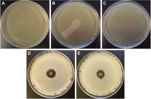 Photographs of the bacteria grown on agar plates.Notes: (A–E) Results of the experiments with Salmonella typhimurium: (A) control experiment, (B) in the presence of the extract of coriander leaves, (C) in the presence of the extract of coriander seeds, (D) in the presence of sample L-0.5M, and (E) in the presence of sample S-0.5M.Abbreviations: L-0.5M, final colloid obtained using coriander leaf extract and 0.5 M AgNO3; S-0.5M, sample obtained using extracts of coriander seeds and 0.5 M AgNO3 solution.