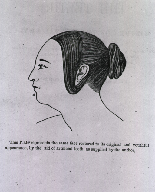 <p>Flap illustration showing profile of woman after use of dentures.</p>