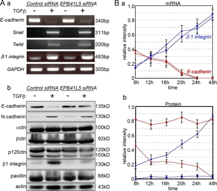 Changes in E-cadherin and β1-integrin expression by TGFβ and/or EPB41L5 siRNA treatment of NMuMG cells. (A) RT-PCR (a) and Western blot (b) analysis. Cells transfected with control or EPB41L5 siRNA were plated at 104/cm2 and cultured in the absence (−) or presence (+) of TGFβ for 48 h, and the expression of each molecule indicated was determined. (B) Quantitation of E-cadherin (red lines) and β1-integrin (blue lines) expression by RT-PCR (a) and Western blotting (b) at the indicated time after plating. Circles represent the cells transfected with control siRNA, and squares those with EPB41L5 siRNA. Ordinates give the relative intensity to GAPDH (a) or actin (b) expression, respectively, determined with ImageJ software. The experiment was repeated three times.