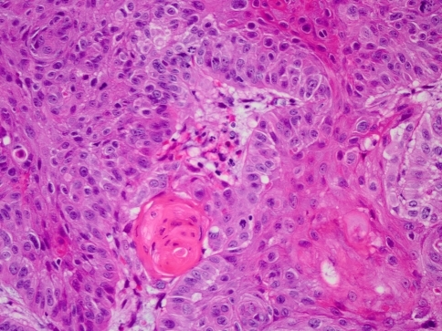 Histologic section of the right true vocal cord biopsy displays squamous cell carcinoma (H & E 40×)