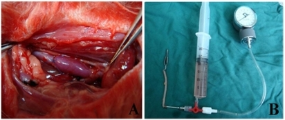 A) Rabbit model of interposition of external jugular vein into the common carotid artery using an end-to-side technique. B) Self-made drug-perfusion device.