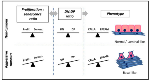 Progenitor imbalance model. A normal phenotype likely requires a fine balance between different progenitor populations (DP and DN). In normal cells, a balance between proliferation and senescence interplays with a balance between these putative progenitor populations. This promotes regulated generation of differentiated cells. In aggressive tumours, increased proliferation and decreased senescence influences the equilibrium between different progenitor populations. This may alter the differentiated/undifferentiated cell balance, promoting basal-like phenotypes associated with tumour progression.