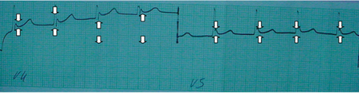 Electrocardiographic manifestations of Hypothermia: absence of P waves, ventricular rate of 78 beats, narrow QRS complexes, a prolonged QT interval and the 'J (Osborn) wave' (white arrows).