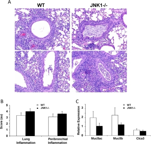 JNK1 Alters Lung Histopathology During Influenza A Infe