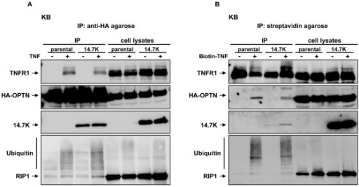 Optineurin and 14.7K are recruited to TNFR1 complex.Parental KB cells and KB cells stably expressing 14.7K were transfected with 30 µg HA-tagged optineurin. 24 hours after transfection, cells were challenged with 50 ng/mL TNF (A) or biotinylated TNF (B) for 10 min or left untreated. Proteins associated with HA-tagged optineurin (A) or biotinylated TNF (B) were analyzed together with the corresponding lysates for the presence of TNFR1, optineurin, 14.7K and RIP1.