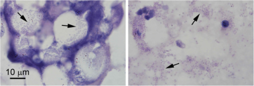Photomicrographs of microsporidian spores in hepatopancreatic cells. Microsporidian spores (arrows) inside B cells of the hepatopancreatic tubule epithelium (left) and free in the tubule lumen (right). Such cells were present in the section in low numbers, giving a misleading impression of the extent of the severe microsporidian infection evident by in situ hybridization as seen in Figure 2. The magnification bar applies to both images.