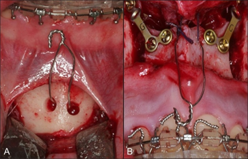 Intraoperative photographs, showing skeletal wires fixed at the symphysis (A) and at the anterior nasal spine (B).