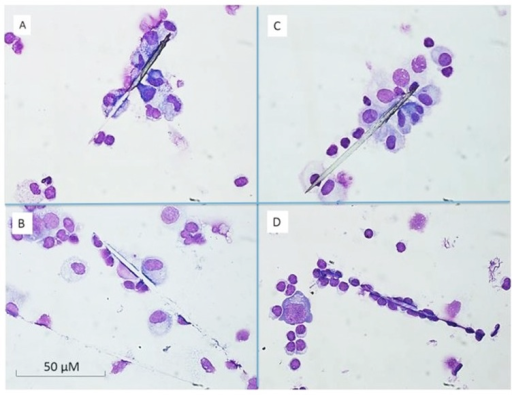Cytospin preparations of PBMC after 6 days of incubation.A and B represents a donor earlier exposed to setae, C and D illustrates not earlier exposed donors. The microscopic view indicated no difference between exposed and non-exposed donors. In A and C mononuclear are seen cells attached to the setae B and D the shows patterns of disintegrated seta. The cultured PBMC and setae were collected by cytospin and stained with May-Grunwald Giemsa.