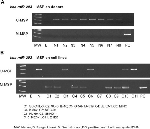 Methylation of hsa-miR-203. (A) U-MSP showed that the methylated control [M] was totally methylated, and all eight normal controls (N1–N8) were unmethylated. In the M-MSP, the methylated control was positive (methylated) but all normal controls were negative (unmethylated). (B) For the cell lines, SU-DHL-6, SU-DHL-16, JEKO-1, MINO, HL-60 and SKNO-1 were completely methylated of hsa-miR-203.