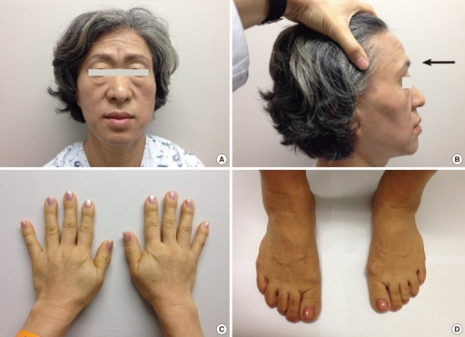(A) Physical examination of the patient revealed frontal bossing, thickened lips, and an enlarged nose. (B) Exaggerated frontal bossing (arrow) observed from the side. Disproportionately enlarged (acromegalic) hands (C) and feet (D) were also seen.