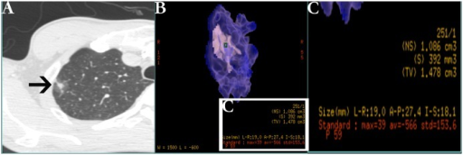 Example of nodule three-dimensional processed and measured on thin-section helical computed tomography (CT) images.(A) Typical ground-glass opacity (GGO, black arrow) nodule on high-resolution CT. (B) The software automatically processed and measured the nodule that be placed a marker (green square) on it. (C) The magnified measurement list of relative image parameters from picture B including diameter, total volume (TV), the maximum CT value (MAX), average CT value (AVG) and standard deviation of CT value (STD).