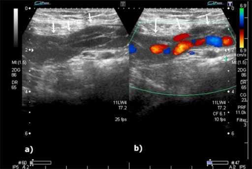 Gray scale and colour Doppler ultrasonography (US) reveals dilated, tortuous channels (white arrows) at the left inguinal region (a, b).