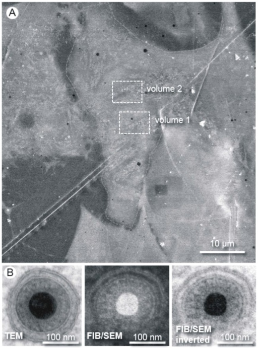 "Methodology and resolution of FIB/SEM tomography. (A) The Epon embedded cells are first visualized by SEM at an acceleration voltage of 10 kV. A region of interest can be easily chosen for the subsequent ""slice and view"" process. The boxes show the positions of the volumes chosen for FIB/SEM tomography; (B) Images of human cytomegalovirus (HCMV) particles acquired from an ultrathin section by transmission electron microscopy (TEM) and from the block face by FIB/SEM. The high resolution of the FIB/SEM image allows clear visibility of the two leaflets of the lipid bilayer. The secondary electron SEM image was acquired with an acceleration voltage of 5 kV."