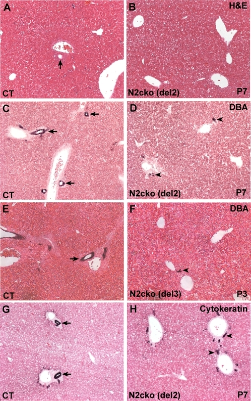 Defects in bile duct formation in Notch2-cko mice using either the Notch2del2 or Notch2del3 alleles.A,B. Hematoxylin and eosin-stained sections at P7 of control littermate (CT) and Notch2-cko mice using the Notch2del2 allele. Bile ducts (arrow) are observed in the periportal region of the control littermate (A), but not the Notch2-cko mouse (B). C–F. DBA lectin staining. C,D. Control littermate and Notch2-cko mice using the Notch2del2 allele at P7. E,F. Control littermate and Notch2-cko mice using the Notch2del3 allele at P3. DBA-positive cells form patent bile ducts (arrows) adjacent to the portal veins in control mice (C,E). In Notch2-cko mice using either the Notch2del2 (D) or Notch2del3 (F) allele, small numbers of DBA-positive cells (arrowheads) are present adjacent to the portal veins, but these cells have not formed patent ducts. G,H. Cytokeratin immunostaining of control littermate and Notch2-cko mice (Notch2del2 allele) at P7. The ductal plate of the control liver (G) has remodeled into epithelial bile ducts (arrows), while the Notch2-cko liver (H) exhibits only ductal plate remnants (arrowheads).