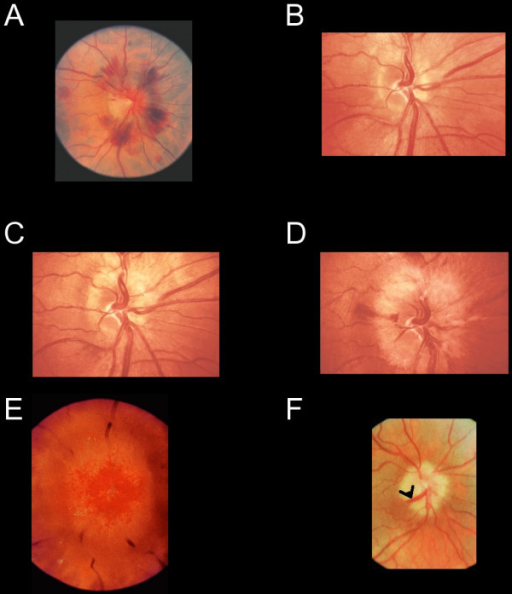 Funduscopic signs of high intracranial pressure. (A) The disc shows florid hemorrhages with relatively little swelling, indicating a rapid, dramatic increase in CSF pressure. Progressive changes of optic disc oedema are seen in a patient with an intracranial tumour who declined treatment (B-D). (B) Early nerve fiber dilatation is seen particularly superiorly, inferiorly and nasally. (C) This increases and venous engorgement develops. (D) Temporal nerve fiber dilatation and swelling of the disc increases and hemorrhages appear. (E) In gross chronic disc oedema the normal retinal vasculature is masked and dilated superficial capillaries are observed. (F) In atrophic optic disc oedema nerve fibers are eventually destroyed and the optic disc without viable nerve fibers does not swell. This patient had longstanding benign intracranial hypertension. Retinochoroidal venous collaterals are present (black arrowhead). (All images are reprinted from reference 17, with permission).