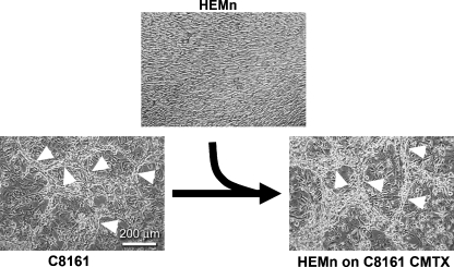 Normal melanocytes acquire a vasculogenic-like dedifferentiated phenotype following exposure to the microenvironment of metastatic melanoma cells. Phase-contrast microscopy of human melanocytes and C8161 melanoma cells grown in 3-D matrices of type I collagen. Human epidermal melanocytes (HEMn) form dense monolayers when cultured on a 3-D collagen-I matrix (top). In contrast, metastatic melanoma cells (C8161) form vasculogenic-like networks (arrowheads). HEMn cells cultured on a matrix conditioned by C8161 cells (C8161 CMTX) are also able to form vasculogenic-like networks. Micron bar equals 200 μm for all micrographs