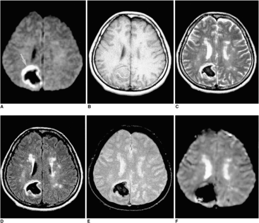 A 49-year-old woman with acute intracerebral hematoma s ...