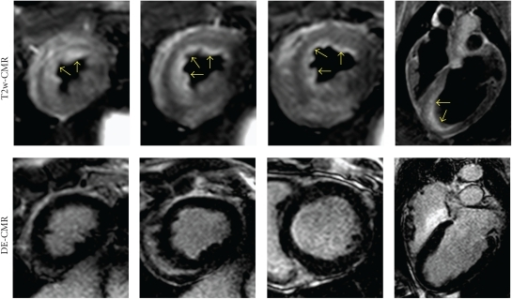 Corresponding short axis and long axis images obtained by CMR. T2w-CMR images showed uptake in the anterior wall (arrows), indicating myocardial edema from ischemia mainly in subendocardium (upper row). However, no specific change was found in delayed enhancement images (lower row). CMR: cardiac magnetic resonance DE: delayed enhancement.
