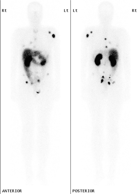 Planar whole-body images in the anterior and posterior projection of a patient with metastatic rectal carcinoid demonstrate intense focal uptake in relationship to multiple bone metastases, particularly in the left scapula and humerus and in the pelvis as well as in soft tissue deposits in the lungs and abdomen, which were better localised on SPECT/CT (not shown).