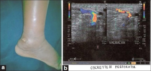 Chronic superficial venous ulcer lateral malleolus and duplex scan picture with reflux, (a) Chronic venous ulcer-lateral malleolus, (b) Incompetent perforators with damage to valves. Blood flows towards probe. subcutaneous edema seen