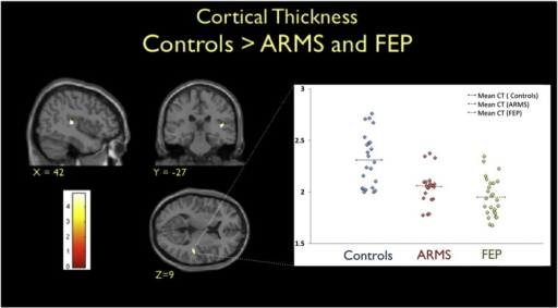 Left. Brain regions showing cortical thinning in both ARMS and FEP participants compared to healthy controls (P < 0.001uncorrected, for display purposes). T-scores are shown in the coloured bar. Right. Cortical thickness (CT) estimates in the right superior temporal cortex are shown for the three groups with the dashed lines indicating group CT means. Cortical thickness is measured in terms of mm between the inner and outer surfaces of grey matter.