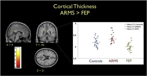 Left. Brain regions showing cortical thinning in FEP patients compared to ARMS participants (P < 0.001 uncorrected, for display purposes). T-scores are shown in the coloured map. Right. Cortical thickness (CT) estimates in the right posterior cingulate cortex are shown for the three groups with the dashed lines indicating group CT means. Cortical thickness is measured in terms of mm between the inner and outer surfaces of grey matter.