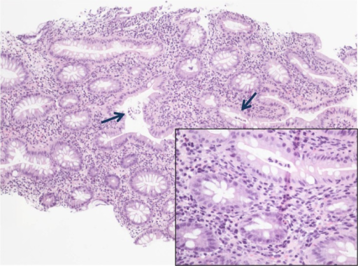 Colon biopsy showing crypt distortion and increased chr ...
