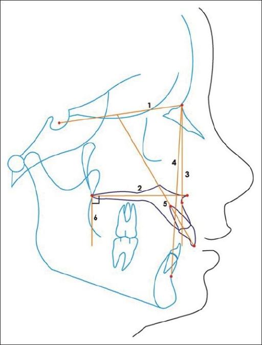 Cephalometric Planes And Lines 1 Sellanasion Plan