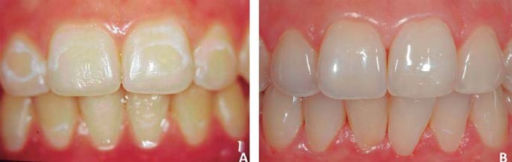 A: Post-orthodontic white enamel stain of hard texture seen in a young patient; B:23 years after the removal of stains using 18% hydrochloric acid/pumice and dentalbleaching with 15% carbamide peroxide