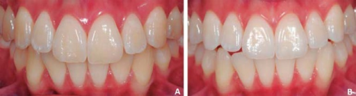 A: Teenage girl, presented with white enamel stain on the maxillary and mandibularteeth; B: After tooth bleaching with 15% carbamide peroxide Opalescence. In somecases, when white stains are small and not prominent, dental bleaching alone usingcarbamide peroxide or hydrogen peroxide in custom trays may lighten the underlyingdentin and enamel sufficiently to camouflage the stain, with no need formicroabrasion