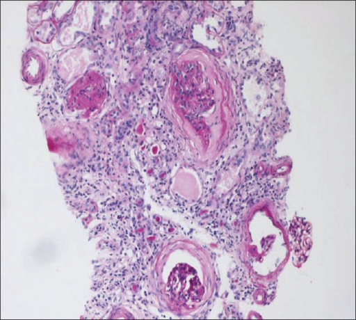 Kidney biopsy (PAS stain) showing features suggestive of chronic interstitial nephritis