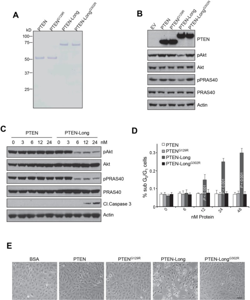 PTEN-Long treatment in culture inhibits PI3K signal and induces apoptosis in 786-0 cells.A, Coomassie stained gel showing representative protein preparations of PTEN, PTENG129R, PTEN-Long, and PTEN-LongG302R. B, Effect of treatment with 25 nM PTEN-Long or other related proteins for 1h on pAkt and pPRAS40. PTEN-Long but not other proteins reduced intracellular phosphorylation of the Akt and PRAS40 in 786-0 cells. C and D, Effect of treatment with PTEN-Long or related proteins at different doses for 24 h on serum-starved 786-0 cells showed that PTEN-Long but not PTEN suppressed PI3K signaling and induced apoptosis, indicated by cleavage of caspase 3 in a dose-dependent manner. Percentages of apoptotic cells were also determined by PI/FACS (C). n = 4; bars represent the means ± SD. E, Representative pictures of the treated cells were taken by phase contrast photography. Protein concentrations were 50 nM. The scale bar represents 20 µm.