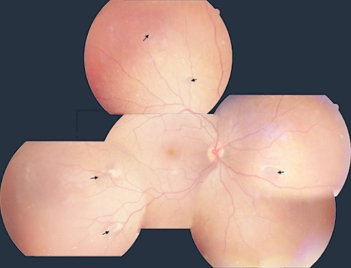Fundus photomontage: multiple egg-shaped hyperpigmented retinal lesions surrounded by a depigmented halo (black arrows)