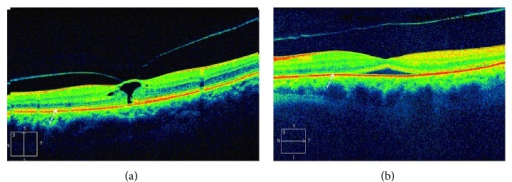 (a) Focal VMT. The arrow points to the ellipsoid zone. (b) Release of VMT after injection of ocriplasmin. A severe disruption in the ellipsoid zone is shown (by courtesy of Dr. Peter K. Kaiser, Cleveland Clinic, Cleveland, OH, USA).