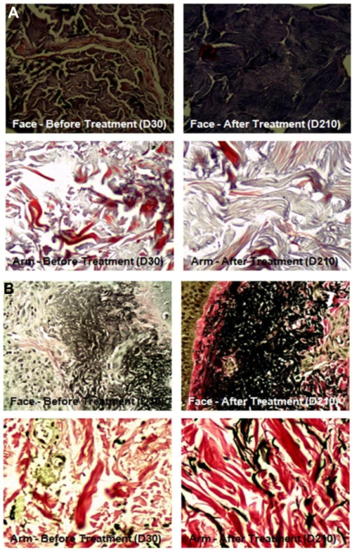 Histological exam showing collagen and elastic fibers of face and left arm before and after treatment.Notes: (A) Collagen evidenced by Masson's trichrome method. (B) Elastic fibers evidenced by Verhoeff method.Abbreviation: D, day.
